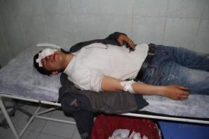 Urfa Birecik protestations  enfant blessé